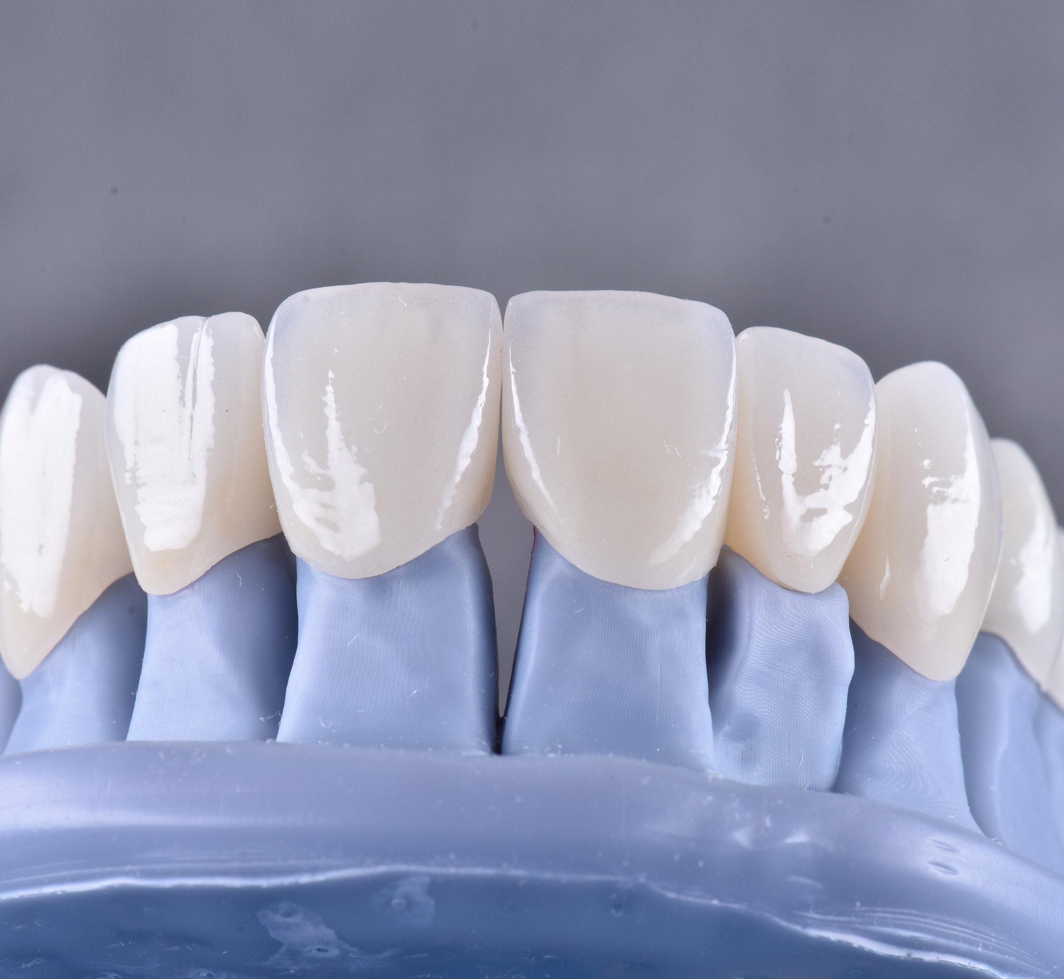 protetika stomatologická